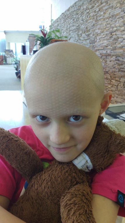 Girl cuddling teddy bear showing criss cross markings on scalp from radiotherapy head mask