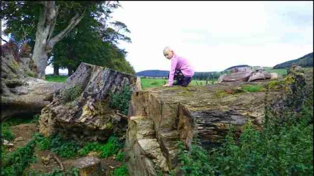 Image of girl with no hair in lilac jumper climbing on rotten fallen tree trunks in field with hills in background